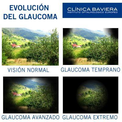 Imágenes evolución del glaucoma