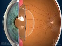 Sección ojo lente fáquica ICL
