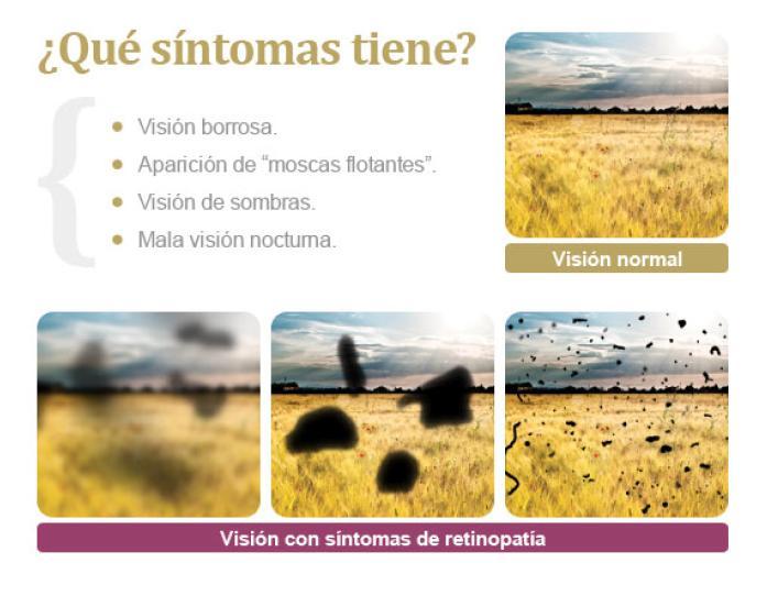Esquema síntomas de la retinopatía diabética