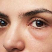 Síntomas oculares: descubre qué significan