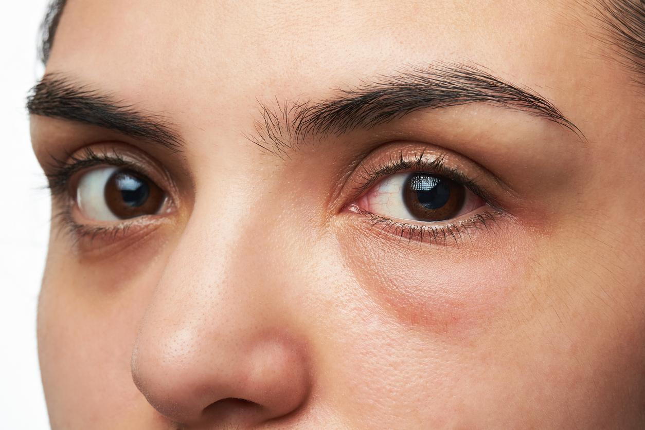 Mujer con ojo hinchado