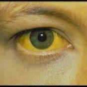 Ojos amarillos o Ictericia en piel: sus causas y tratamiento