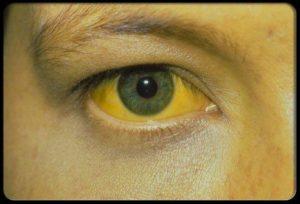 ojos amarillentos