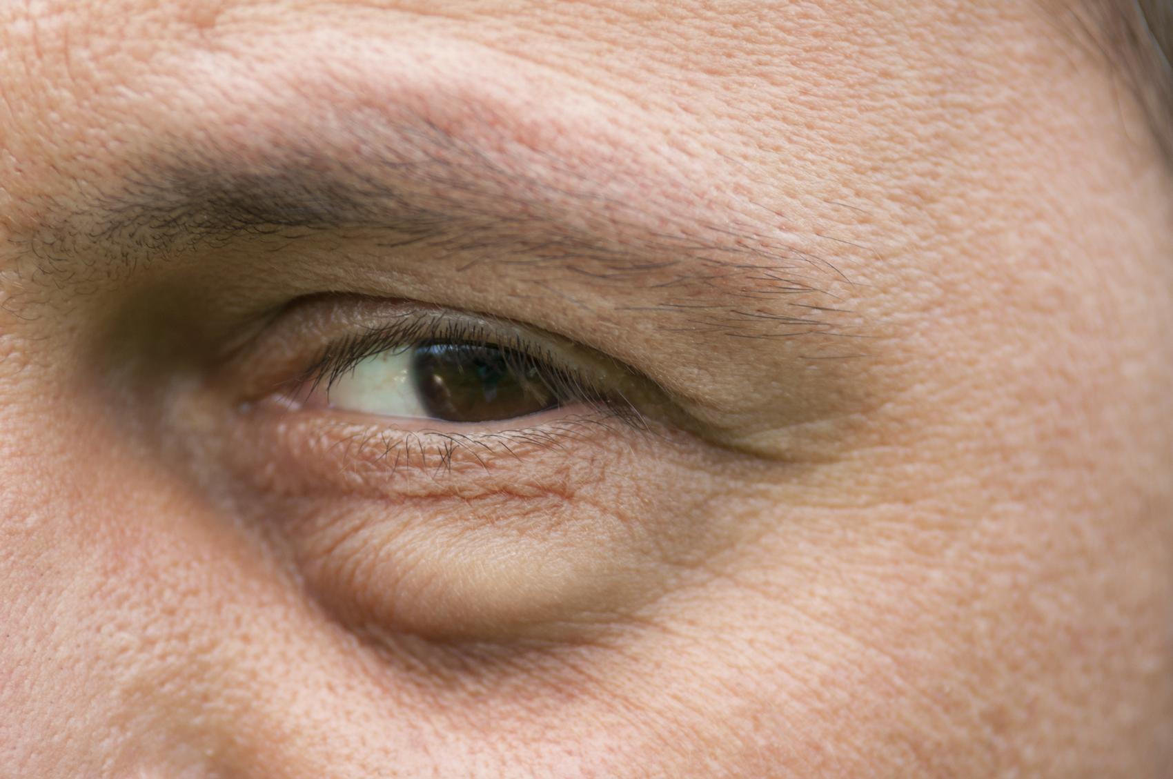 Hombre con ojo hinchado