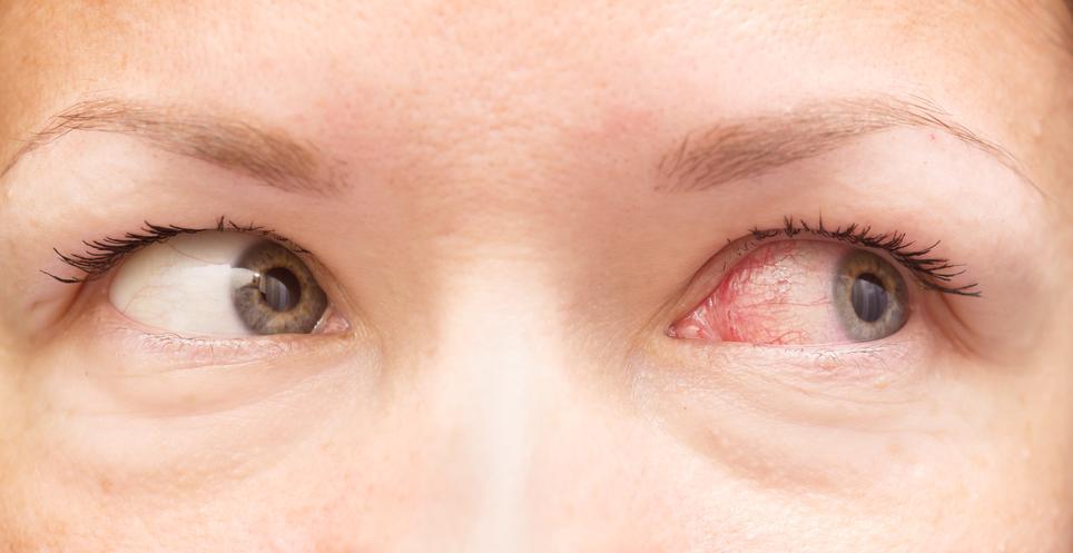 tenía los ojos rojos