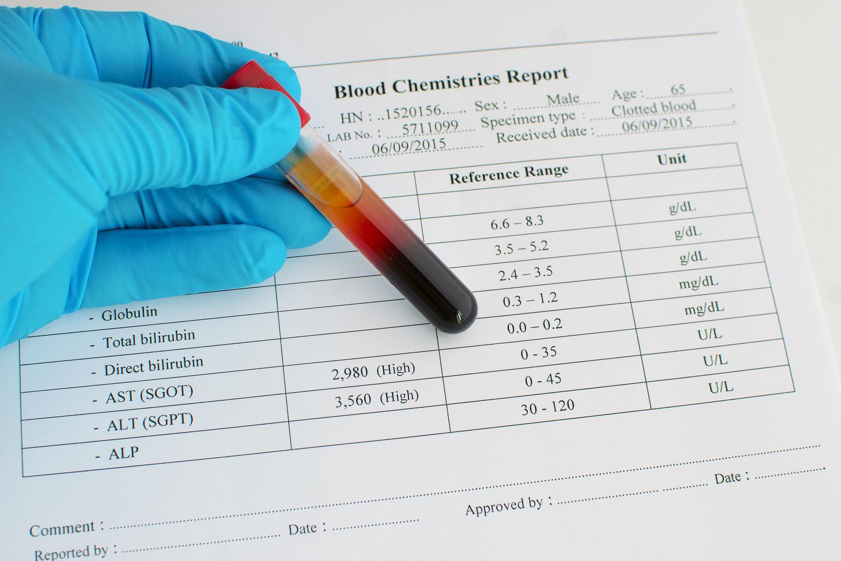 Resultados analítica de sangre