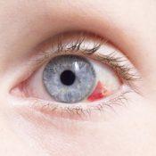 Derrames oculares: ¿por qué se produce un derrame en el ojo?