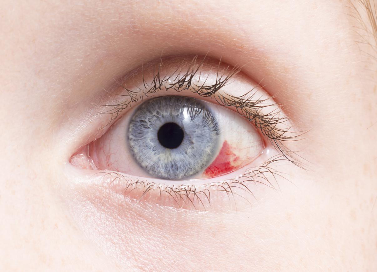 Primer plano ojo azul con mancha roja
