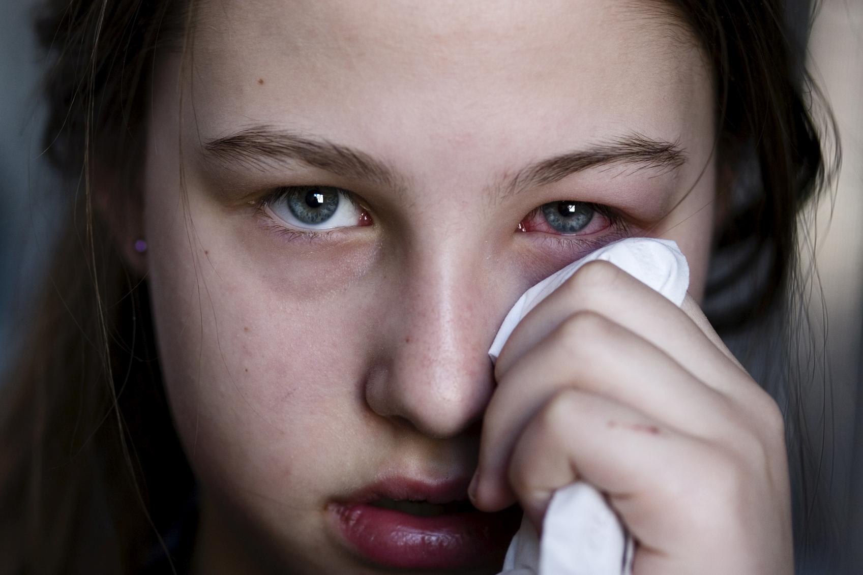 Chica con los ojos rojos limpiándose con un pañuelo