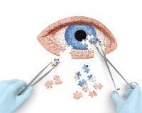 Puzzle de un ojo azul
