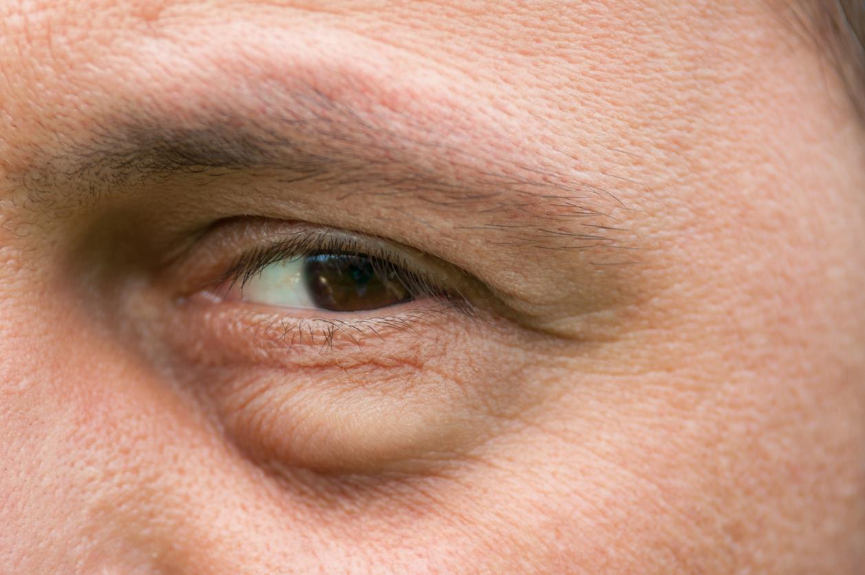 Primer plano ojo marrón con bolsas