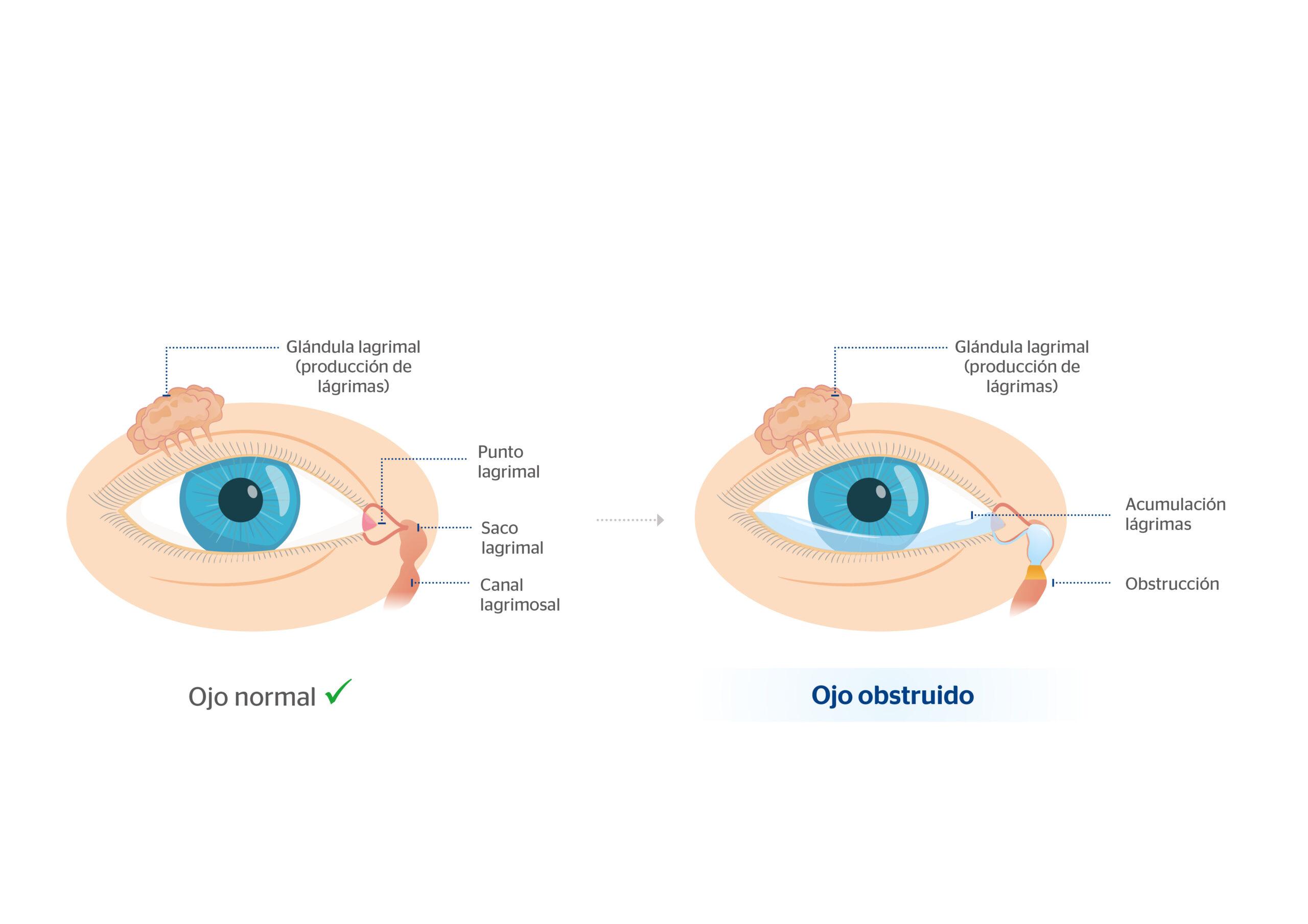 Obstrucción vías lagrimales