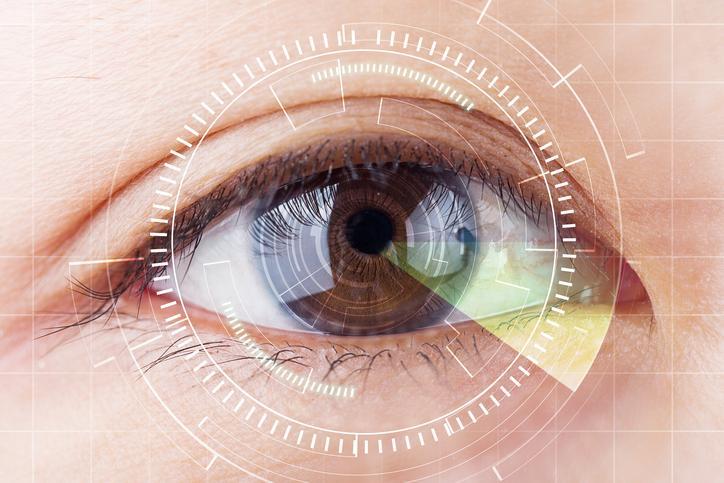 Diagrama blanco sobre ojo marrón