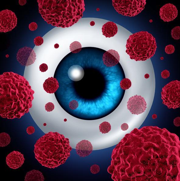 Ilustración ojo con manchas rojas