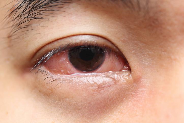 Ojo rojo con lágrimas