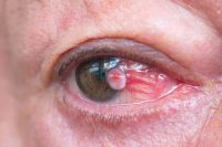 Ojo con mancha blanca pterigion