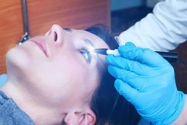 Aplicación del láser en un ojo durante una operación con PRK