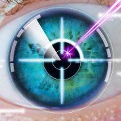 Principales problemas de las lentillas intraoculares y sus soluciones