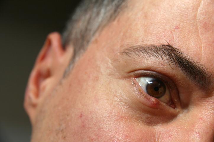 Hombre con un bulto en el ojo