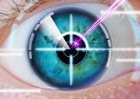 Infografía ojo durante aplicación del láser