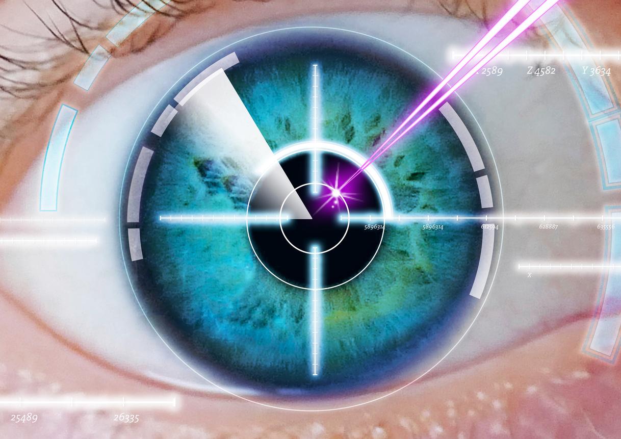 Diagrama blanco y láser sobre ilustración de ojo