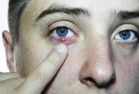 Mujer tocándose un bulto en el ojo