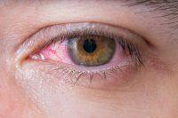 Herpes ocular síntomas