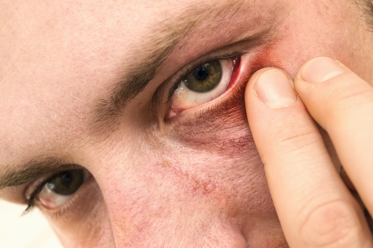 Hombre de ojos marrones tocándose un ojo