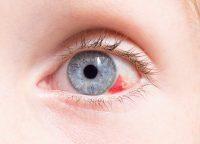 Primer plano ojo azul con derrame ocular