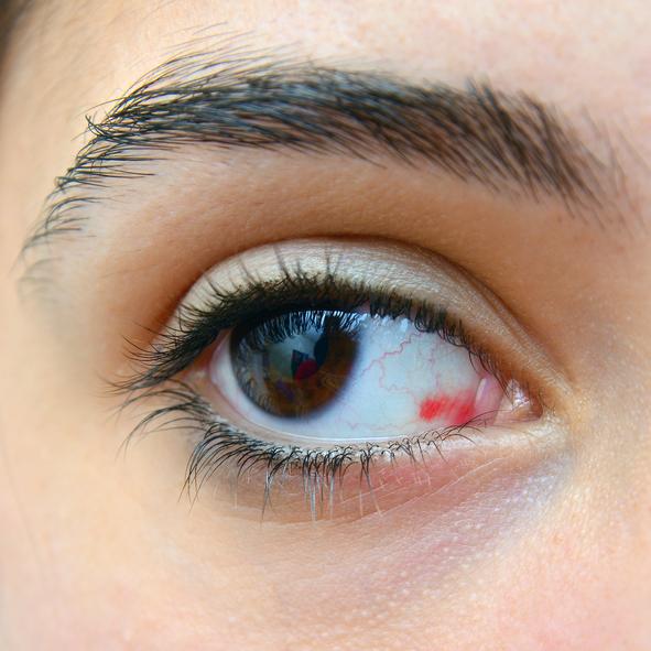 sangre+en+ojo+izquierdo