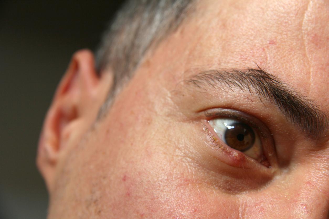 Ojo marrón de hombre con bulto en el párpado inferior