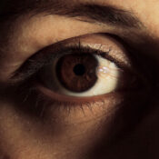 Carnosidad en los ojos: síntomas, causas y tratamiento