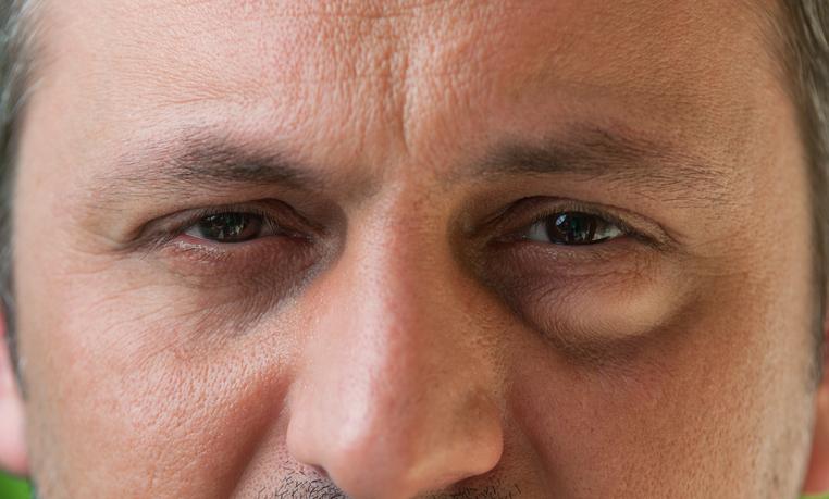 Primer plano de hombre con ojos oscuros