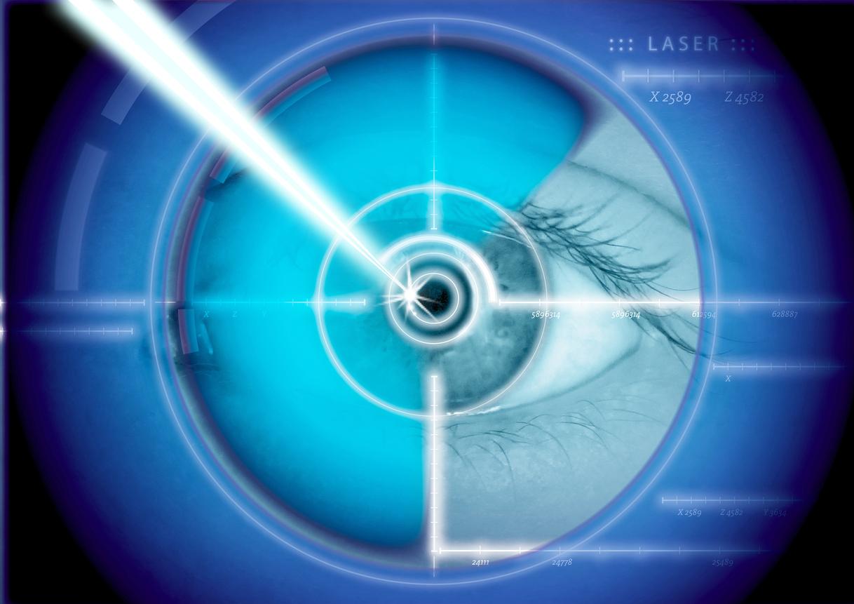 Ilustración aplicación del láser sobre ojo
