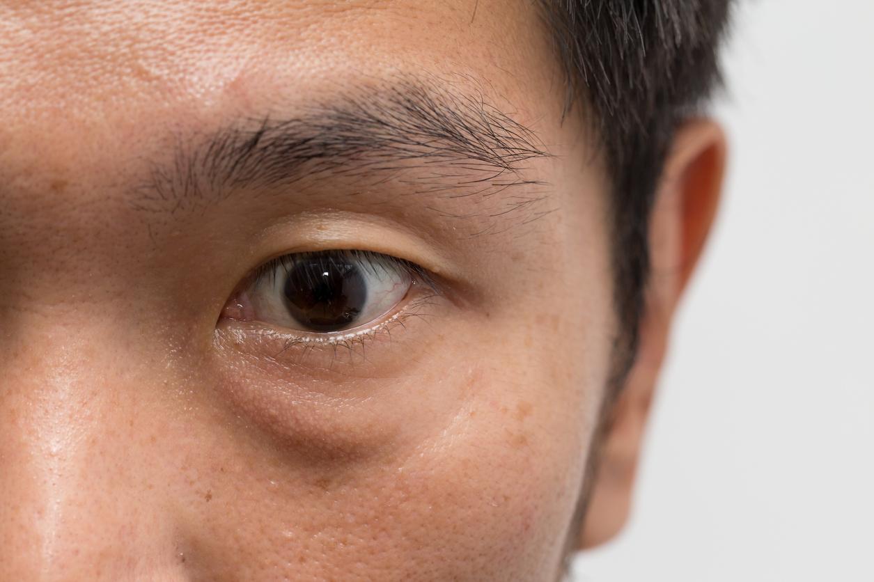 Ojo marrón de hombre con bolsa en el párpado inferior