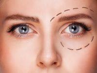 Dibujo de círculo sobre ojo preoperatorio