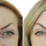 Blefaroplastia antes y después: descubre los cambios que se pueden lograr