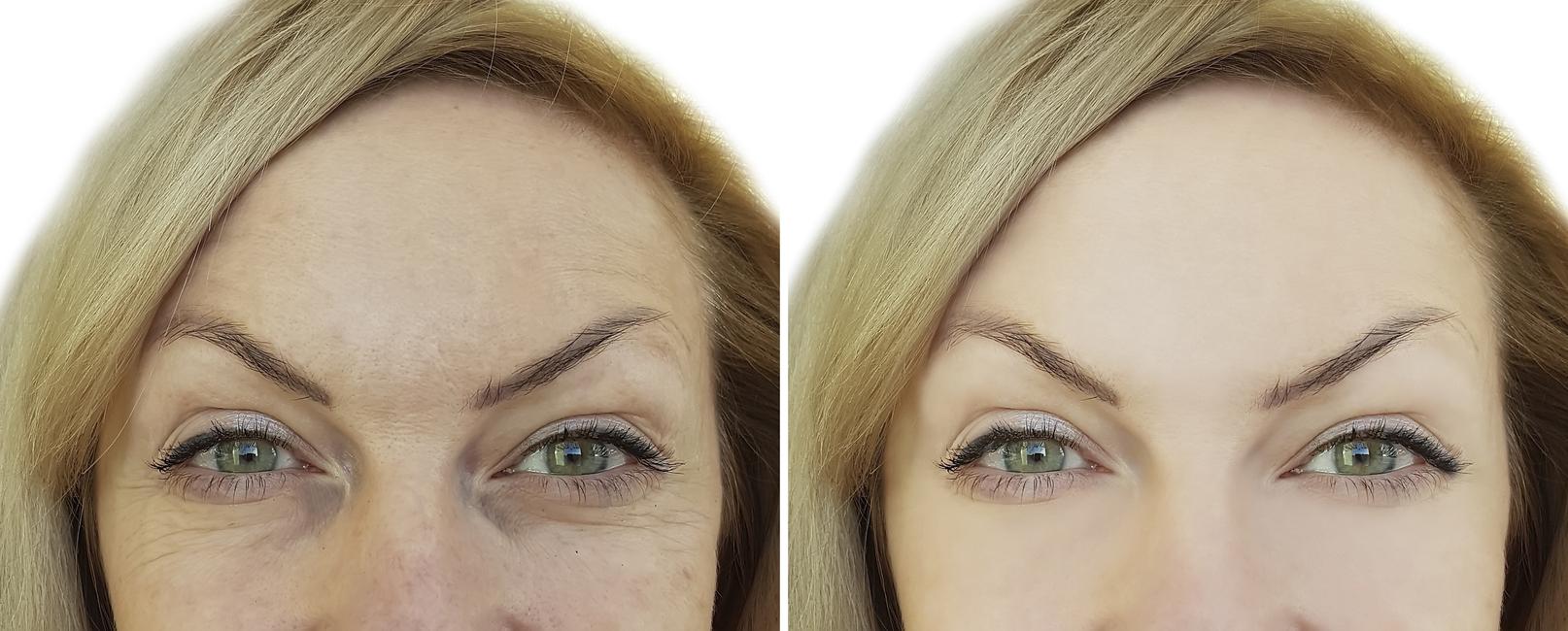 Imagen de mujer antes y después de una blefaroplastia