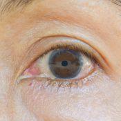 ¿Sabes qué es la opacidad corneal?