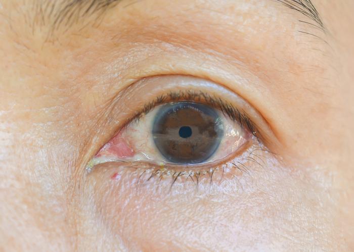 Ojo con iris marrón con halo blanco