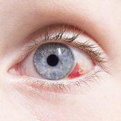 Sangre en el ojo: ¿cómo actuar?