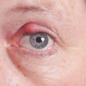 Orzuelo enquistado: causas, tipos y tratamientos