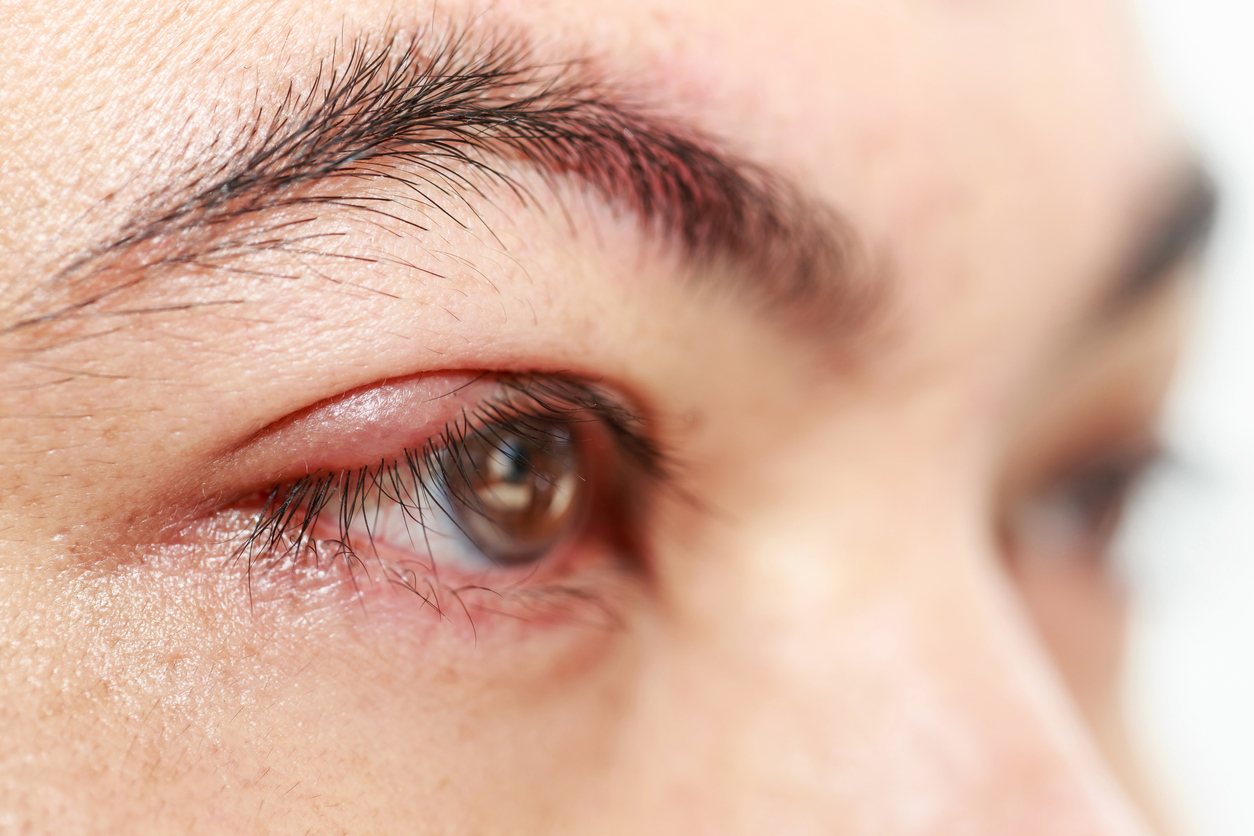 Ojo inflamado de mujer inflamado de perfil