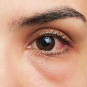 Derrame en el ojo: resuelve tus dudas