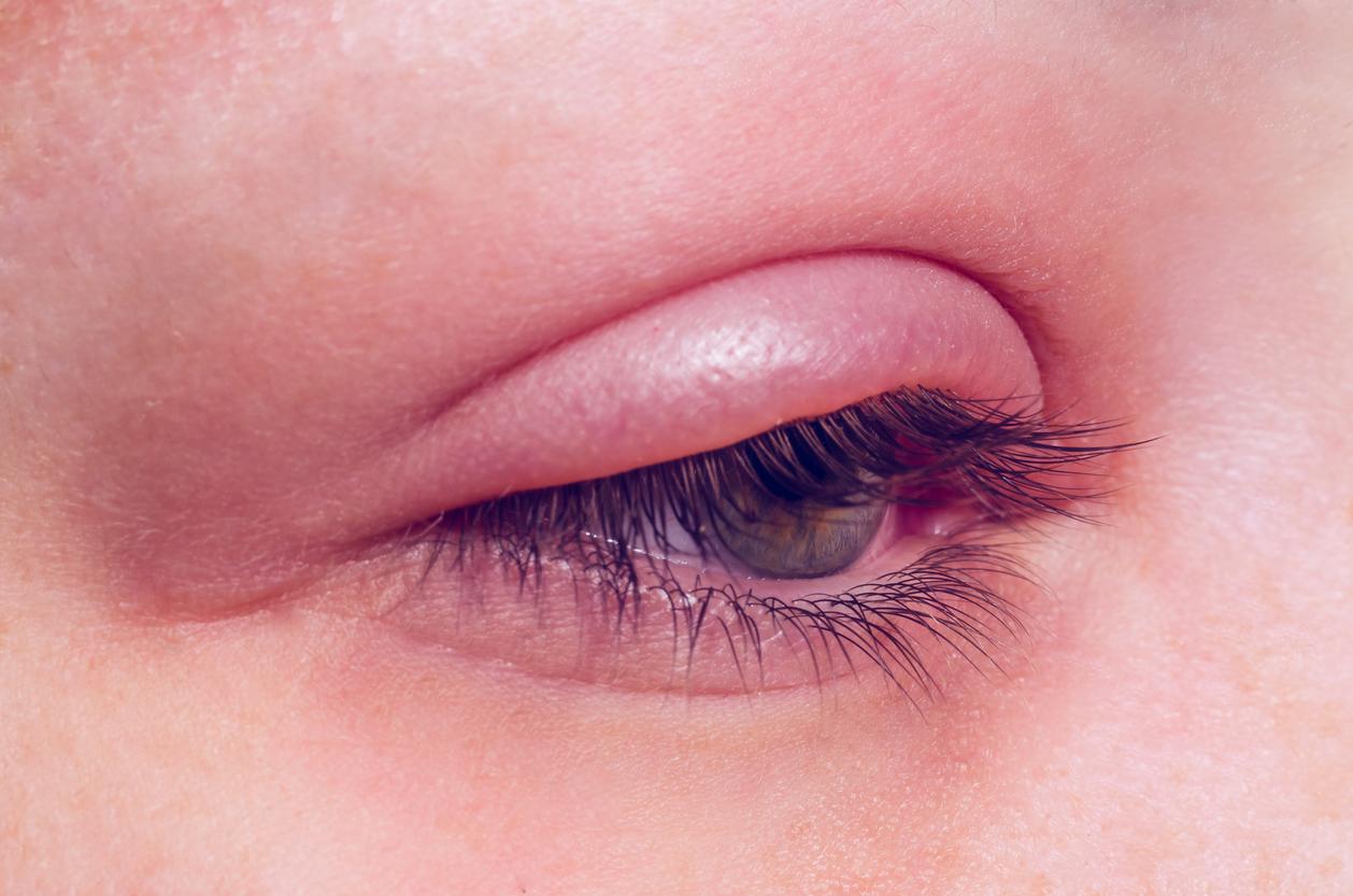 Primer plano de ojo con orzuelo