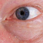 Grano en el párpado: causas y tratamiento