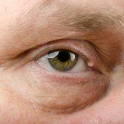 Quiste de grasa en el ojo: cómo eliminarlo y consejos para prevenirlo