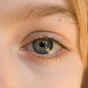 Lunar en el ojo: causas, síntomas, diagnóstico y tratamiento
