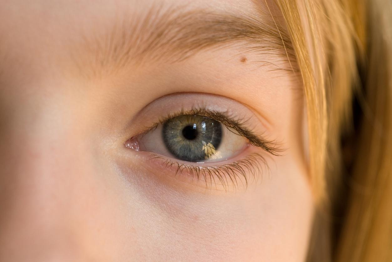 Primer plano del ojo de una niña rubia con un lunar