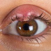 Párpado inflamado: ¿qué puede indicar?